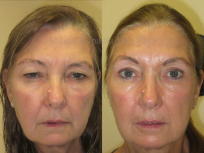 Woman in her early 60s before and after ptosis repair and upper eyelid surgery, revealing improved eyelid symmetry and a more awake appearance