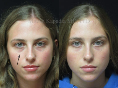 Woman in her early 20s before and after lower eyelid filler injections, showing reduced undereye shadowing for a refreshed look