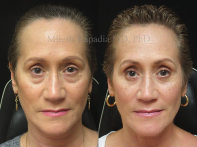 Woman in her mid 50s before and after lower eyelid surgery, showing a refreshed, less tired appearance