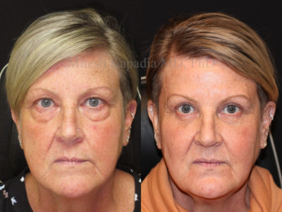 Woman in her mid-50s before and after upper and lower eyelid surgery, and in addition, lower eyelid fillers. This displays a smoother, more youthful and refreshed appearance