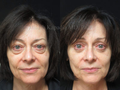 Woman in her early 60s before and after upper and lower eyelid surgery, revealing greatly reduced under eye puffiness and eyelid hooding, creating a rejuvenated and more youthful appearance