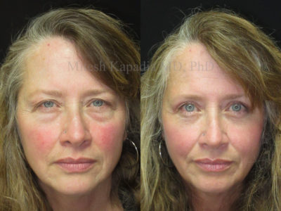 Woman in her late 50s before and after upper and lower eyelid surgery, showing diminished under bags, giving her a refreshed, more youthful look