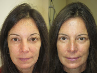 Woman in her late 40s before and after upper eyelid surgery, revealing a refreshed and more symmetrical appearance