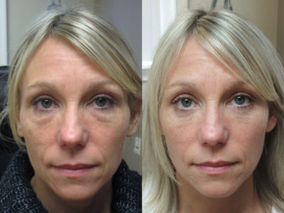 Woman in her 40s before and after lower eyelid surgery, leaving her looking well rested and natural