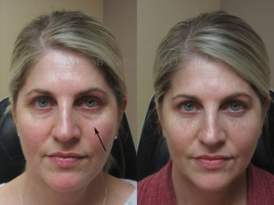 Woman in her early 50s before and after lower eyelid filler injections, showing her mild undereye puffiness greatly decreased, giving her a less tired and refreshed look