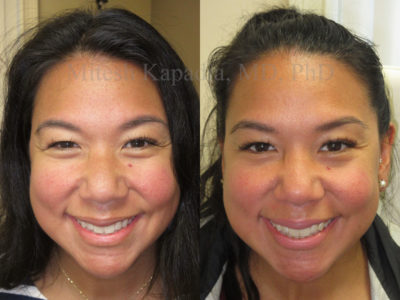 Woman in her 30s before and after being treated with Botox for crows feet and a brow lift. This patient appears with a more symmetrical eye area, as well as reduced wrinkles around the eyes, making them appear larger