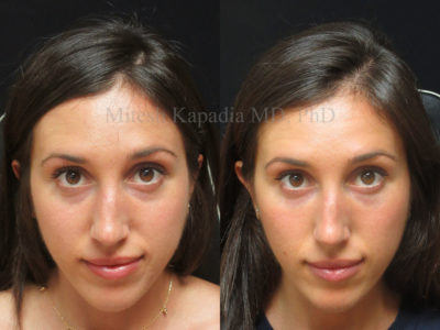 Woman in her late 20s before and after lower eyelid filler, revealing a less tired appearance