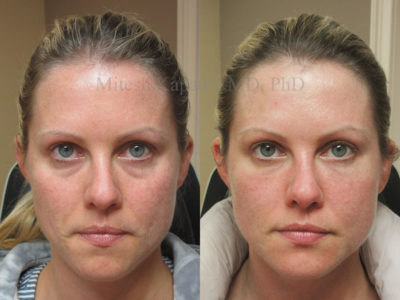 Woman in her mid-30s before and after filler injections to blend the eyelid-cheek junction, alleviating her undereye puffiness and shadowing, leaving her looking refreshed and vibrant