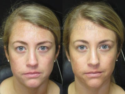 Woman in her early 30s before and after upper eyelid surgery, revealing more of her eyes, making them appear larger and more awake