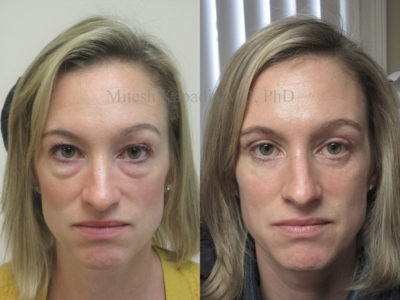 Woman in her early 40s before and after upper and lower eyelid surgery, giving her a more youthful, refreshed appearance