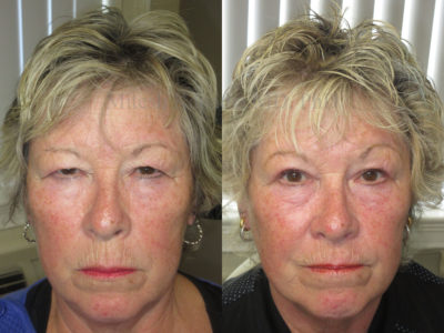 Woman in her 70s before and after upper eyelid surgery, revealing much less hooding over her eyes, making her appear rejuvenated and more youthful