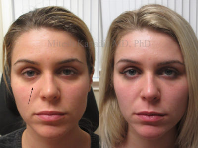 Woman in her late 20s before and after lower eyelid filler injections, revealing reduced hollowing and dark circles, making her appear less tired and rejuvenated