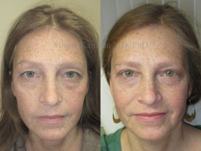 Woman in her early 40s before and after upper eyelid surgery, leaving her with a natural, refreshed and more youthful look