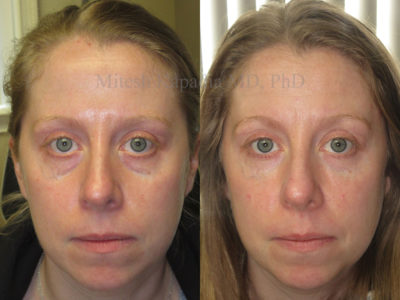 Woman in her 30s before and after lower eyelid and midface fillers, appearing refreshed and well rested three weeks after her injections