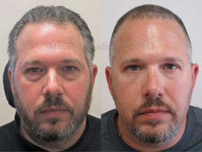 Man in his late 40s shown to display results after upper and lower eyelid surgery, revealing a refreshed appearance