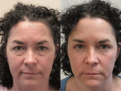 Woman in her mid-40s before and after upper and lower eyelid surgery, revealing a refreshed and more youthful appearance