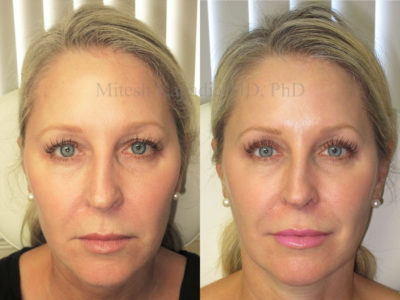 Woman in her late 40s appears more awake and less tired after upper eyelid surgery