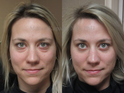 Woman in her 30s before and after lower eyelid surgery, giving her a refreshed and natural look