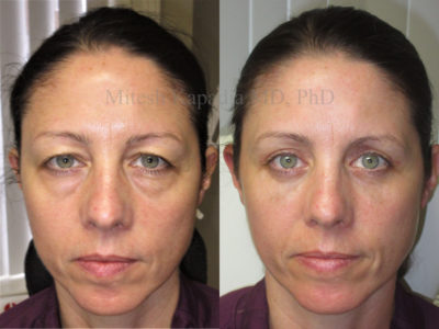 Woman in her 40s before and after upper and lower eyelid surgery, with undereye filler injections done six weeks after her procedure, appearing less tired and rejuvenated
