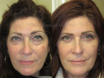 Woman in her mid-50s before and after upper and lower eyelid surgery, leaving her with a more symmetrical and youthful look
