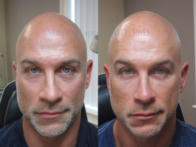 Man in his mid-40s before and after lower eyelid filler injections, displaying a subtle refreshed appearance