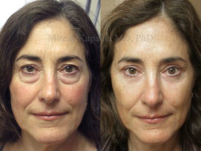 Woman in her early 60s after upper and lower eyelid surgery looks younger, less tired and refreshed