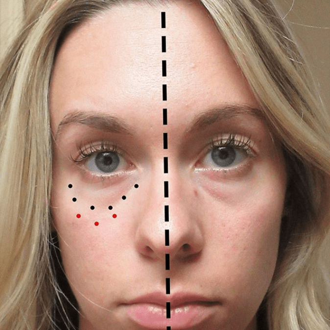 Patients who need lower eyelid and tear trough fillers often require midface fillers as well