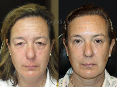 Woman in her mid-50s before and after upper eyelid surgery, revealing a refreshed, more youthful and less tired look