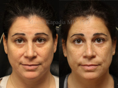 Woman in her mid-40s before and after lower eyelid filler injections, leaving her with diminished dark circles and a well rested look