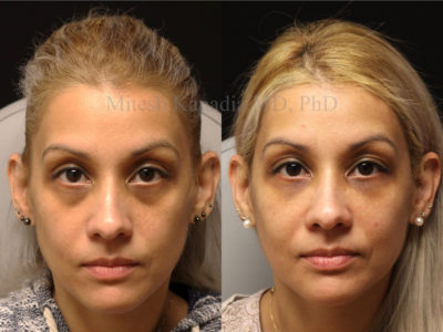 Woman in her early 40s before and after lower eyelid and midface filler injections, revealing the reduced appearance of dark undereye circles, giving her a refreshed and well rested look