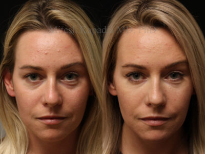 Woman in her early 30s before and after lower eyelid and midface filler injections, leaving her looking refreshed and natural